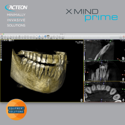 Acteon Prime 2D and 3D CBCT Dental Imaging System offers the easy to use AIS software