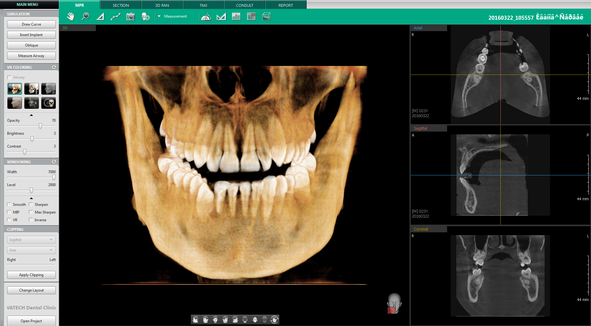 Ez3D-i_01 software for Vatech's Digital Equipment Range